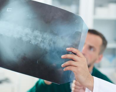 Raqamli rentgenografiya